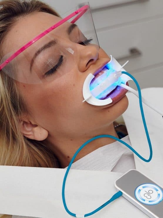 chairside whitening with autoclavable mp