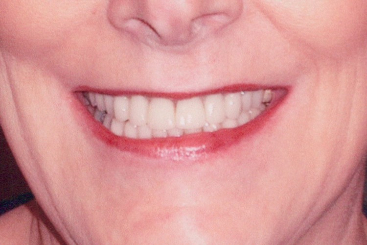 crowns veneers upper lower arches 016 after
