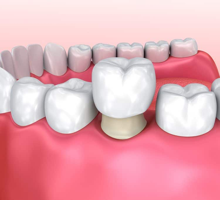 dental crown 1
