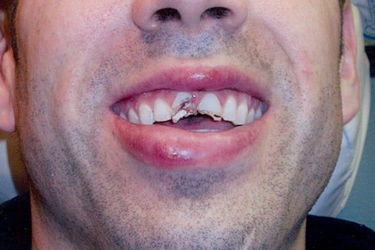 dental emergency before 1