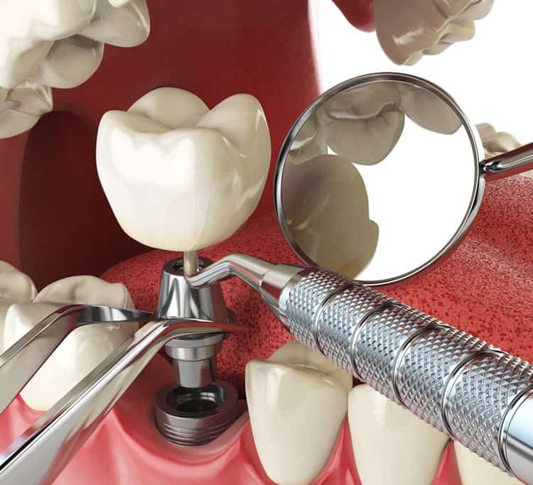 dental implants last a lifetime