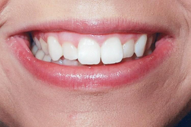 gum contouring 057 before