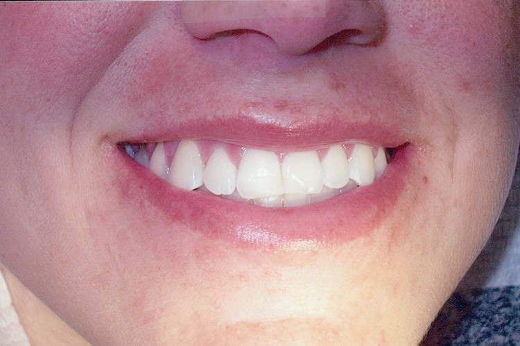 gum contouring traditonal veneers 072 before