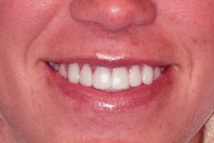 gum contouring traditonal veneers 073 after
