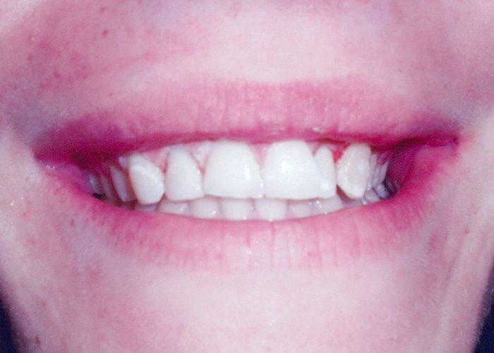 gum work before