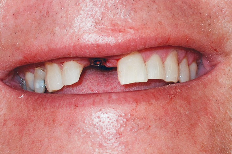 implant placement and crow with traditonal veneers 055 before
