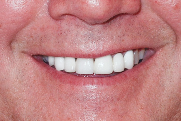 implant placement and crow with traditonal veneers 056 after