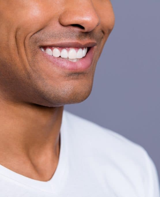 man smiling with veneers
