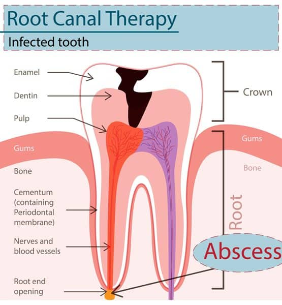 root canal therapy infected tooth