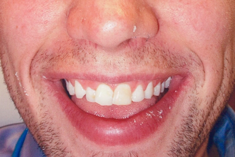 traditional veneers with gum contouring 047 before