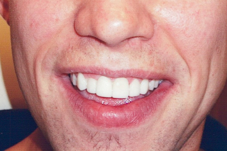 traditional veneers with gum contouring 048 after