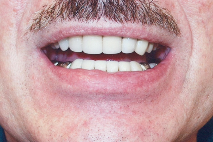 veneers on lower match upper crowns 063 after